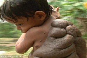 Kaplumbağa Çocuk !