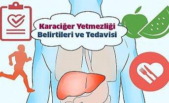 Karaciğer Yetmezliği Belirtileri ve Tedavisi