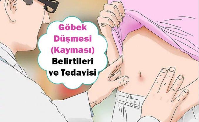 Göbek Düşmesi - Kayması Belirtileri ve Tedavisi