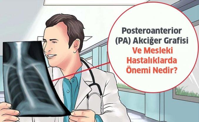 PA Akciğer Grafisi Ve Mesleki Hastalıklarda Önemi Nedir?